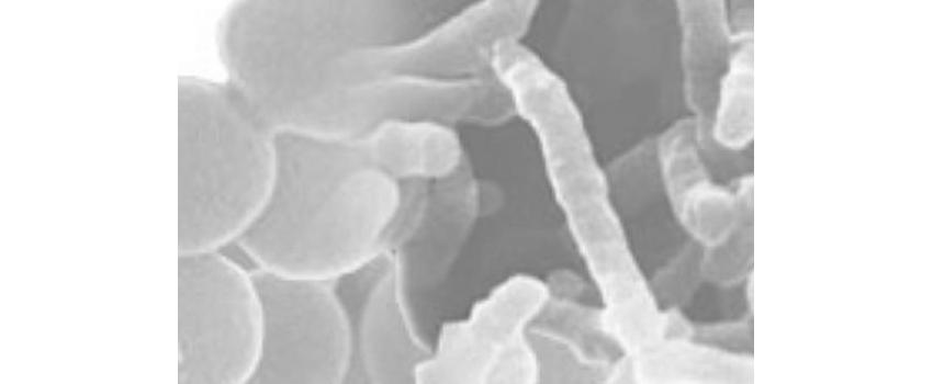 Oenologie 3.0 : réduire les sulfites grâce aux levures et bactéries œnologiques